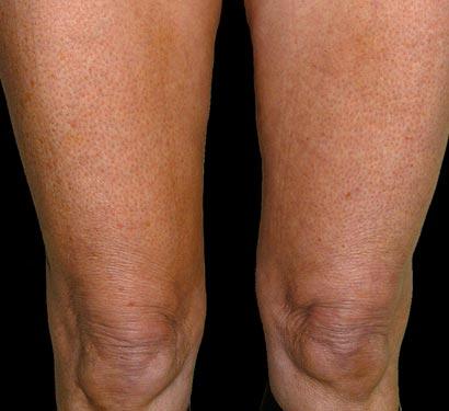 thermage po zabiegu ujędrnienia skóry ud