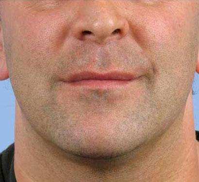 poprawa napięcia skóry twarzy lifting