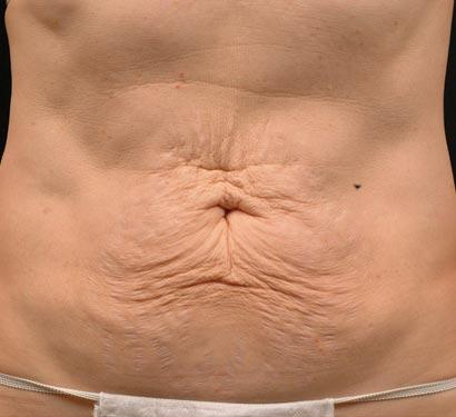 przed zabiegiem lifting brzucha