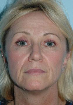 usuwanie zmarszczek poprzez wstrzyknięcie botoxu przed zabiegiem