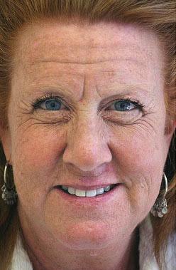 usuwanie zmarszczek botoxem