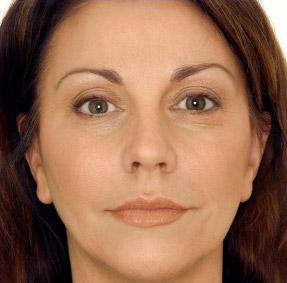 botox zabieg w gabinecie medycyny estetycznej w Chrzanowie