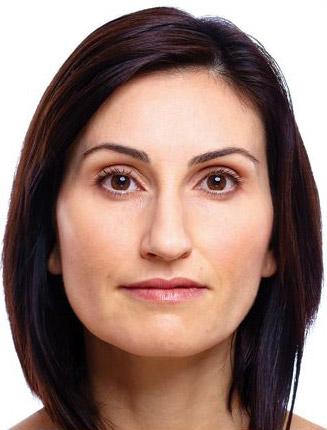 kwas hialuronowy po zabiegu poprawy elastyczności skóry w gabinecie dermatologa w Chrzanowie
