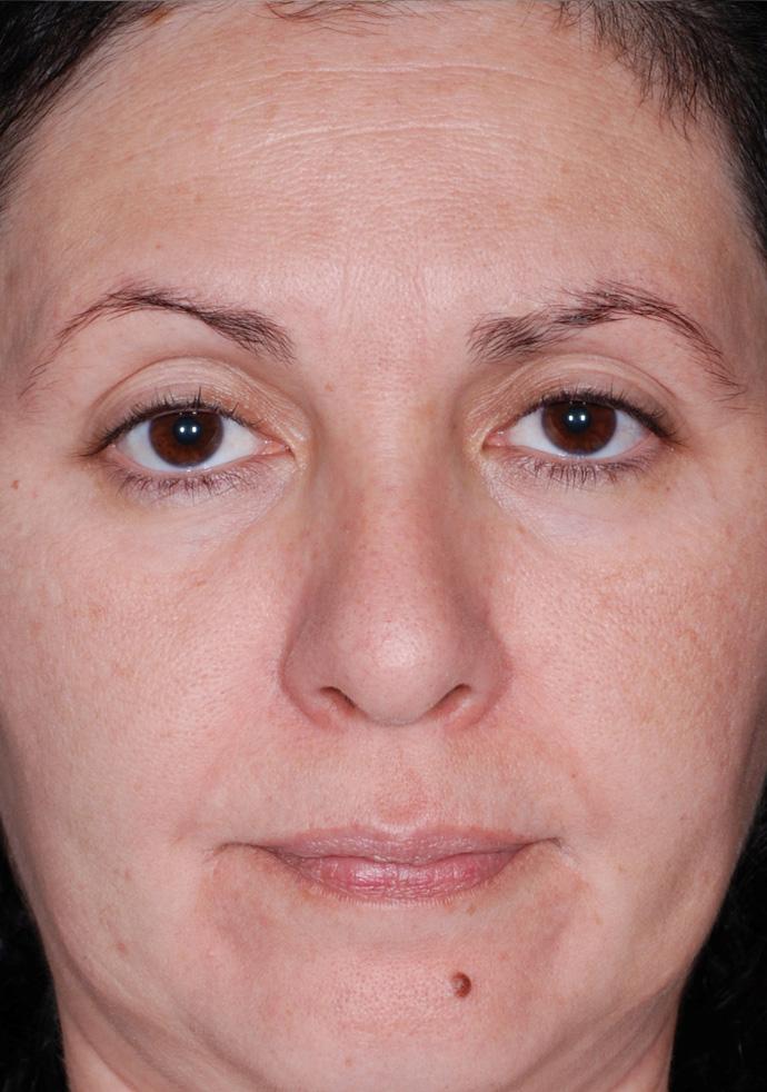 efekt po zabiegu peeling w gabinecie dermatologa w Chrzanowie
