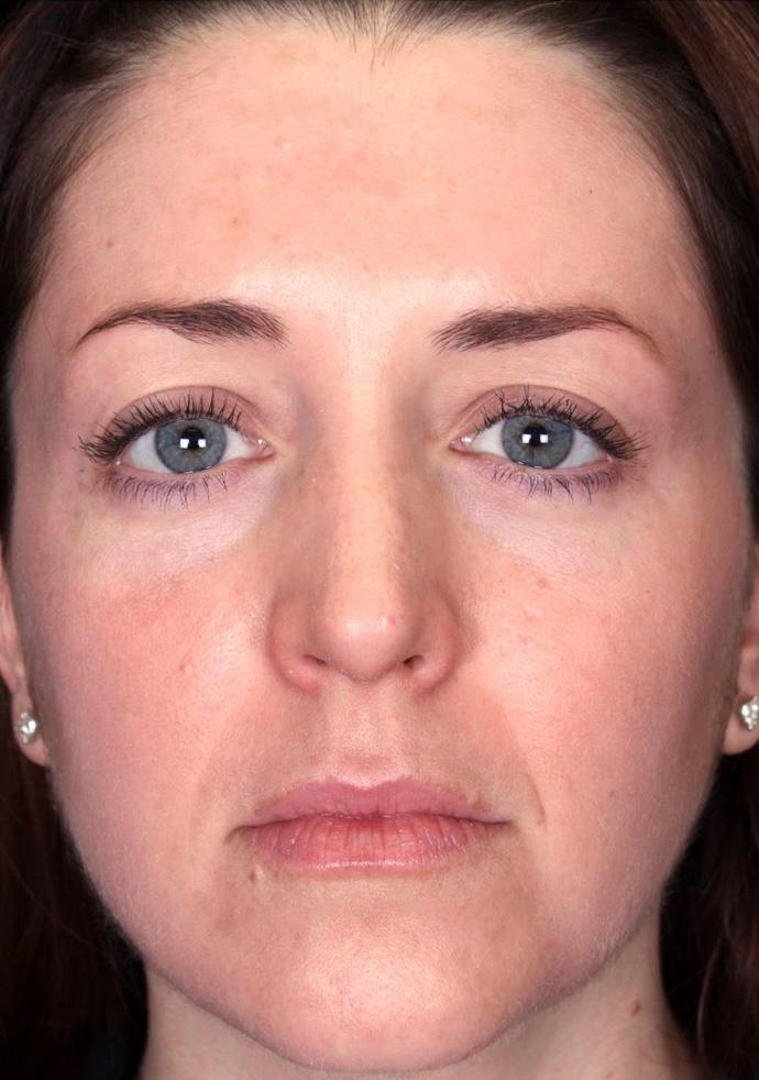 peeling zabieg na przebarwienia skóry twarzy efekt po