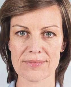 korekta twarzy metodą sculpra u dermatologa w Chrzanowie