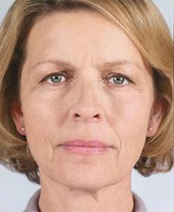 elastyczność poprawa gęstości skóry
